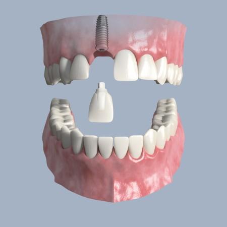 Zahnimplante Bogenhausen- wie der eigene Zahn