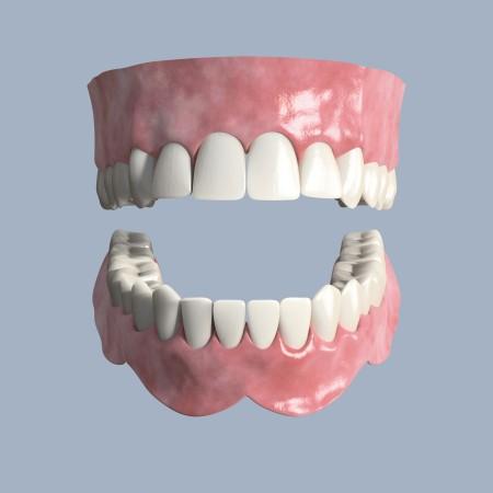 Zahnimplantate - Zahnarztpraxis Laplace M-Bogenhausen